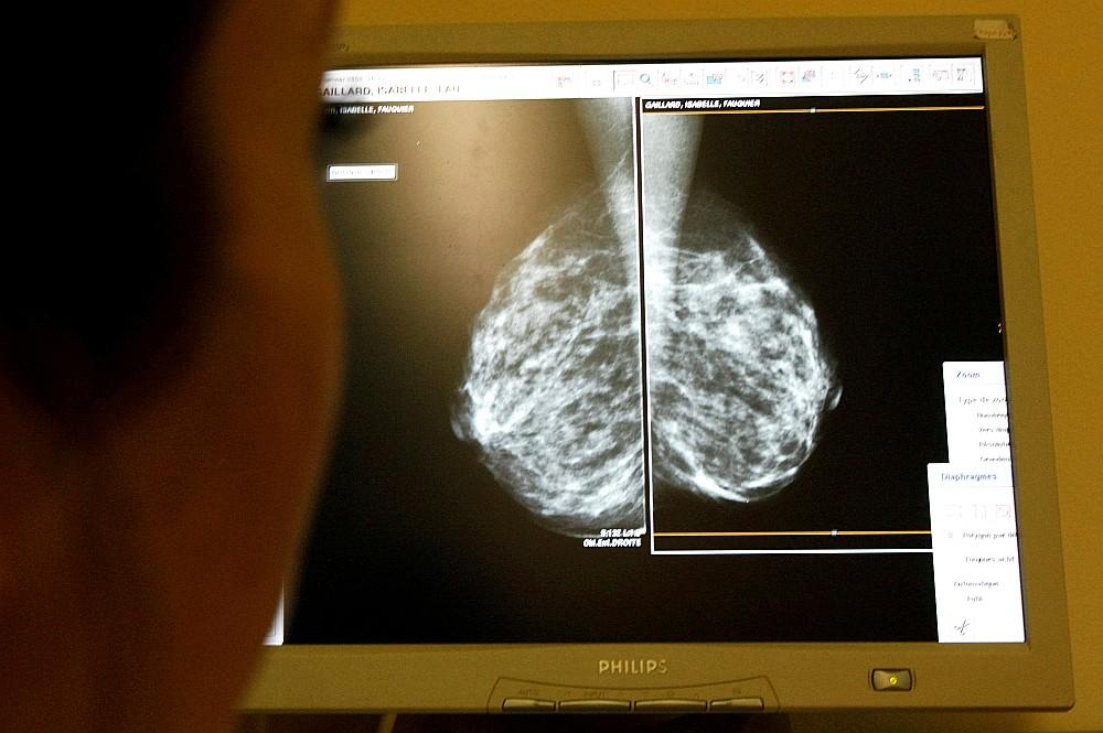 Ne visās 27 Latvijas ārstniecības iestādēs, ar kurām Nacionālajām veselības dienestam ir līgums par valsts apmaksāto krūts audzēju agrīnas diagnostikas skrīninga pakalpojumu, ir mamogrāfi, kuri spēj dot kvalitatīvu attēlu.
