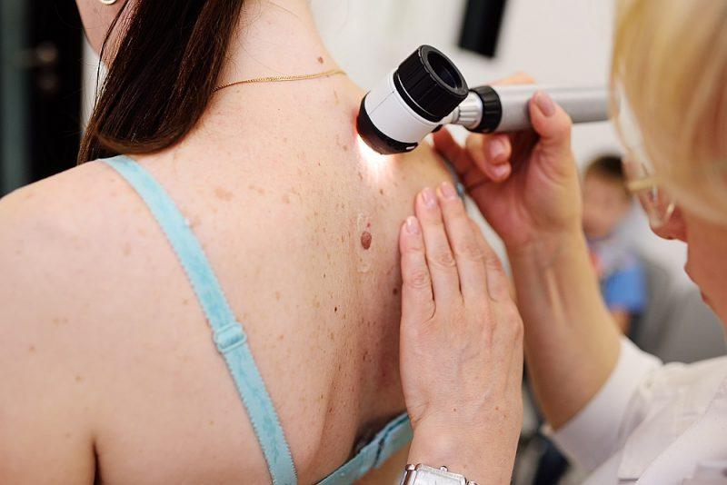 Aizdomīgi ādas veidojumi jāpārbauda dermatologam.